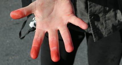 prevent frostbite, cold, fingers